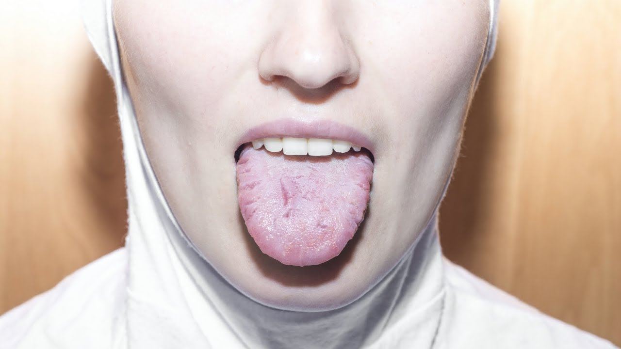 Cancerul la gat – care sunt simptomele - Farmacia Ta - Farmacia Ta