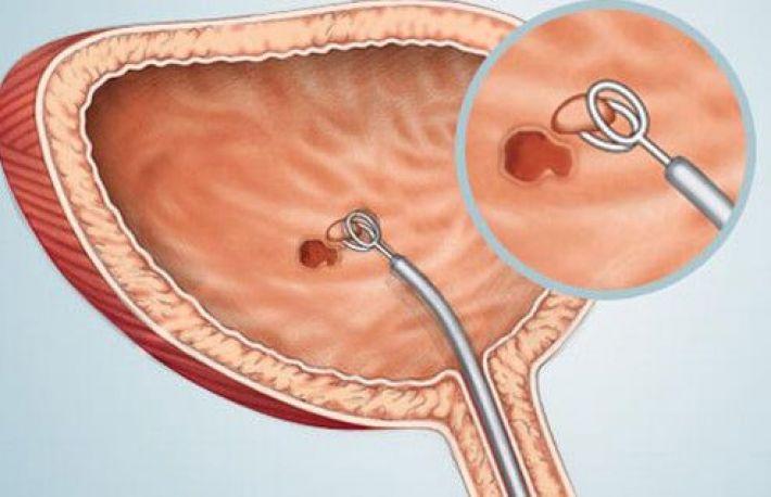 vezica urinară)
