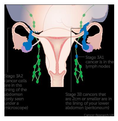 Cancerul ovarian: cele 4 stadii ale bolii și tratamentul