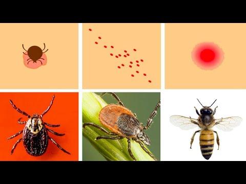medicamente pentru insecte parazite