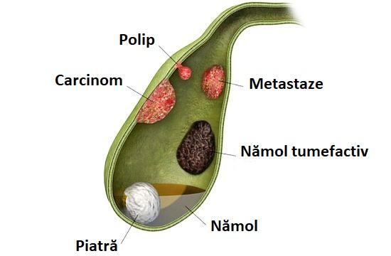 tratamentul natural al vezicii biliare infezione da papilloma virus donne