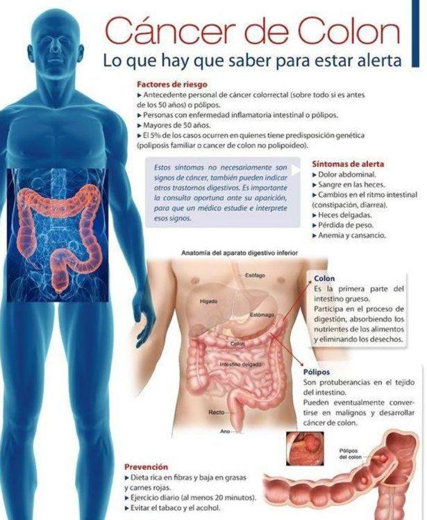 cancer de colon y recto sintomas