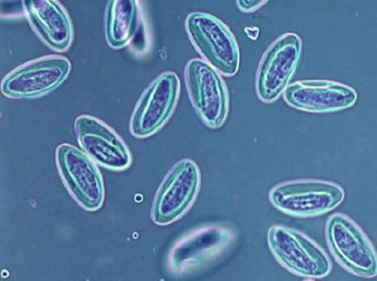 Enterobioza oka