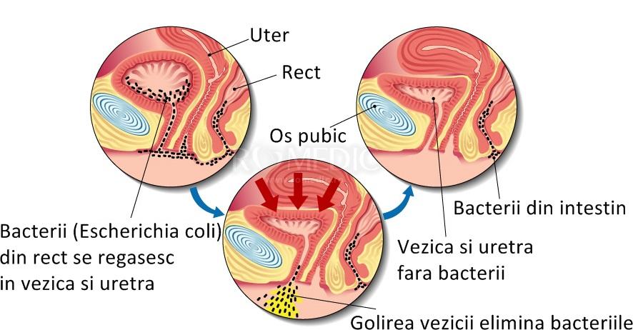 cancer cai urinare elemis suplimente detoxifiante