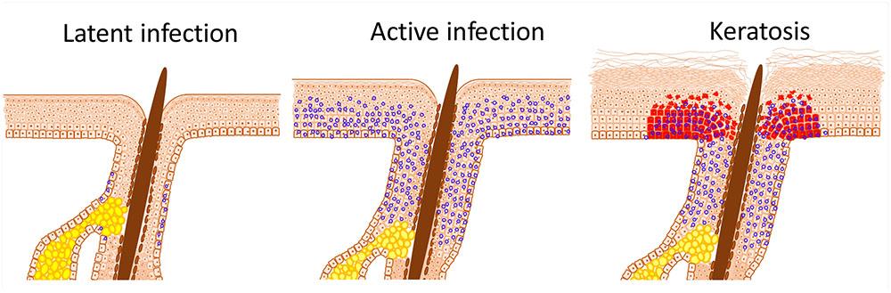 detection papillomavirus gorge