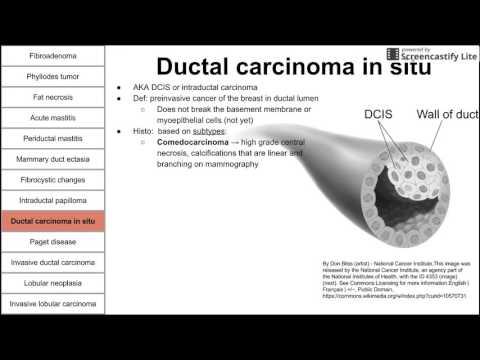 cefalizare de tip platyhelminthes cancerul mamar triplu negativ