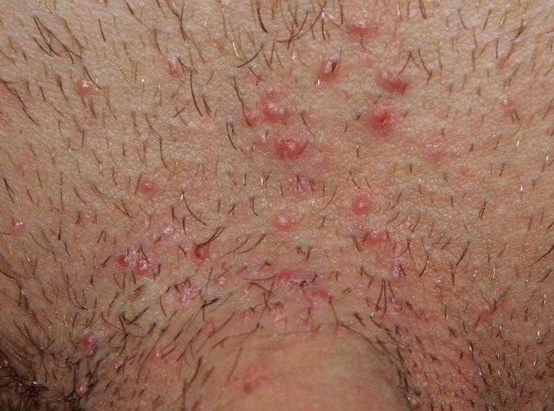 Veruca Genitala (Negi) | BASH Bradford