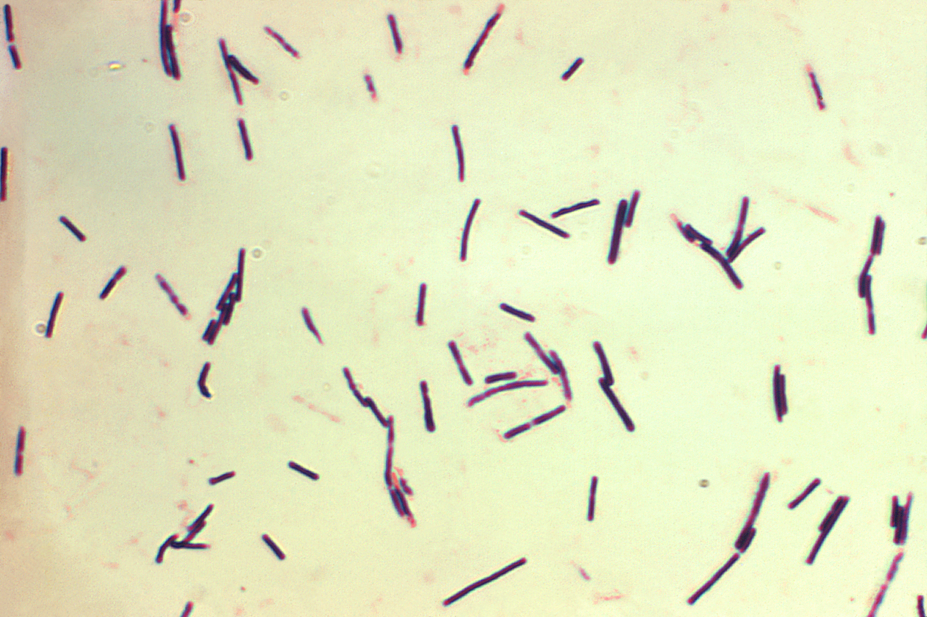 Clostridium difficile toxine A/B
