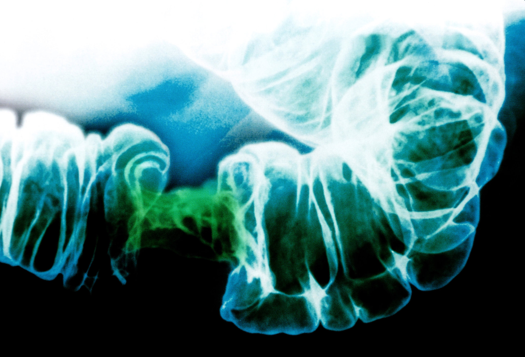 filaria vierme peritoneal cancer chances of survival