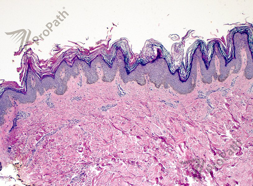 Varicele reticular că - Histopathology of confluent and reticulated papillomatosis