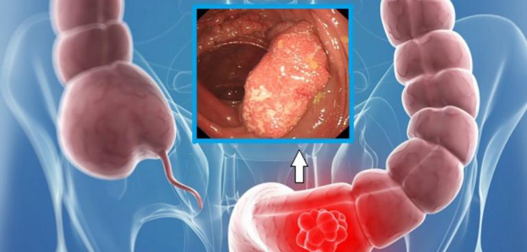 avertizare de detoxifiere a colonului