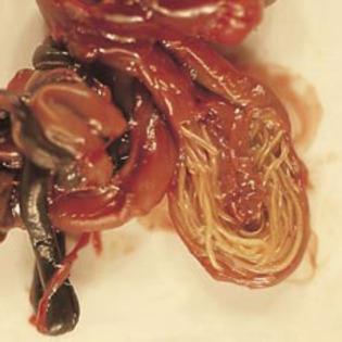 cum să scapi de un vierme parazit