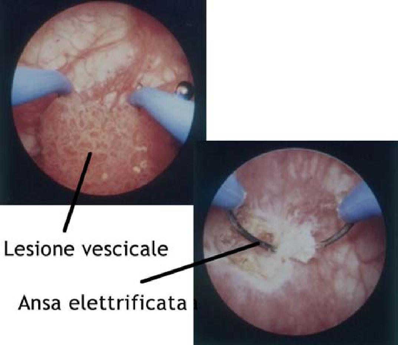 Papilloma uroteliale benigno, Papilloma wart on eyelid