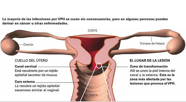 Virus hpv y embarazo, Virus de papiloma y embarazo - csrb.ro