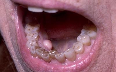 papillomavirus gencive