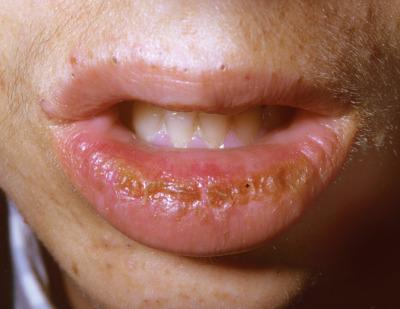 papilloma labbra molluscum contagiosum sau condilom