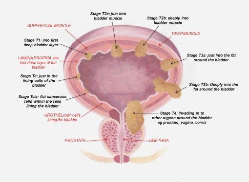 leac cu spectru larg pentru tenă peritoneal cancer nccn