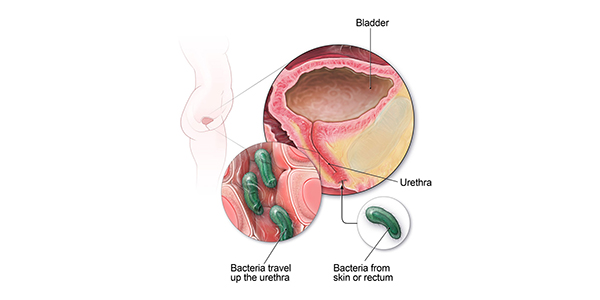 Does hpv cause bladder infections - csrb.ro, Can hpv cause bladder problems
