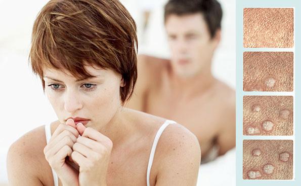 alocina alfa ajută la negi genitale