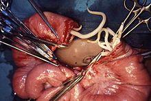 Helminths helminthiases Unspecified helminth infection