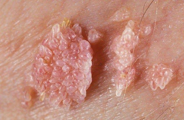 papilloma herpes vierme la un tratament pentru copii