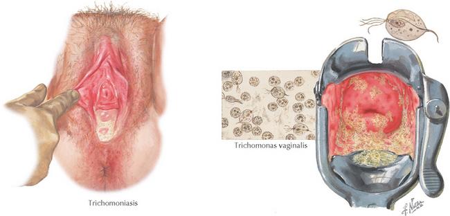 trichomoniasis condilom cum să tratezi viermii în scaun