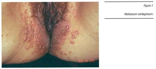 El papiloma es benigno o maligno Papiloma tumor benigno