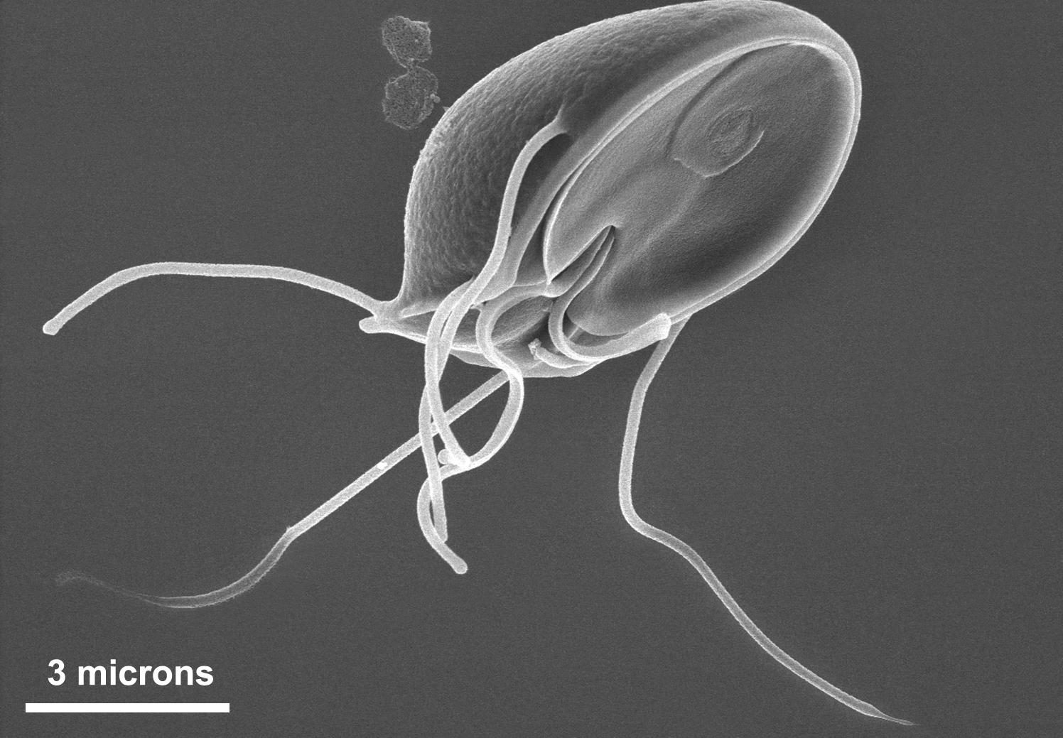 îndepărtarea verucilor genitale cu solkovagin