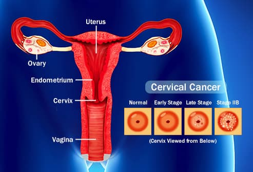 does hpv always become cancer anthelmintic definition in medical