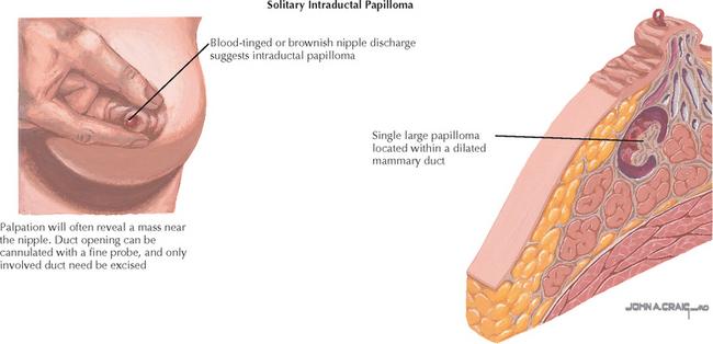 ductal papilloma discharge pastile de parazit în plămâni