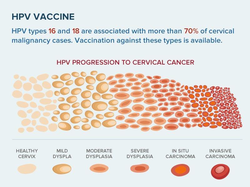 hpv vaccine medscape
