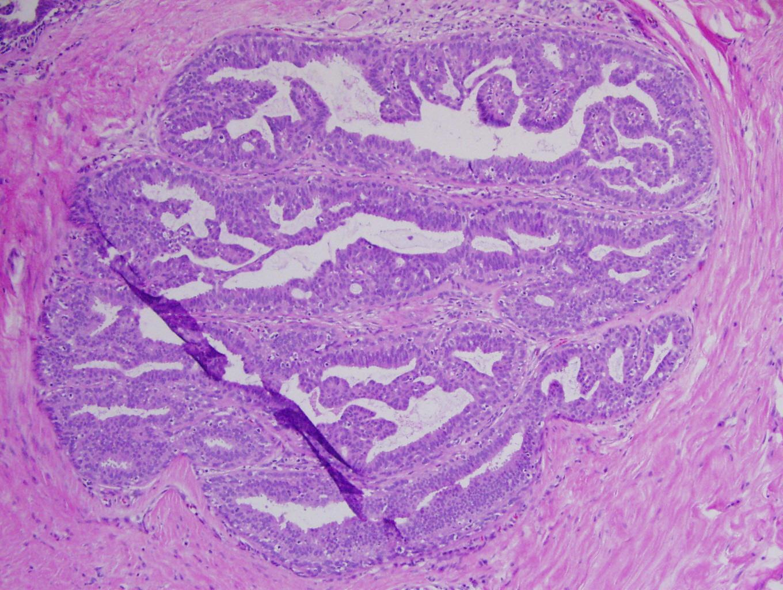 Define papilloma colli