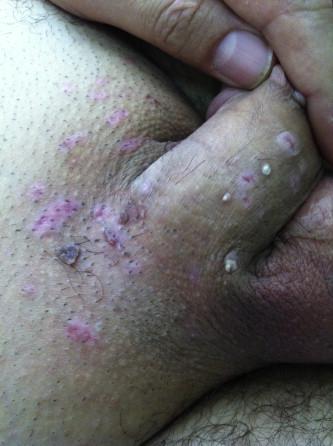 Wart treatment with liquid nitrogen