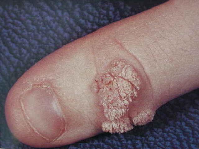 non hpv papilloma condiloame numai în anus