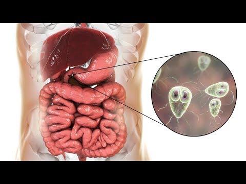 paraziti cu maladii citronnier zentel tablete