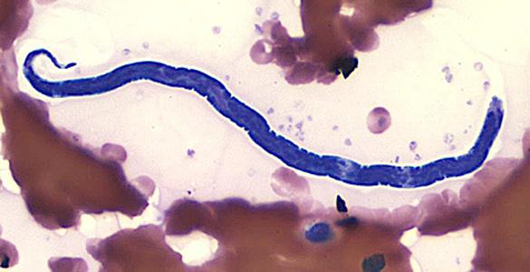parazit de tapeworm