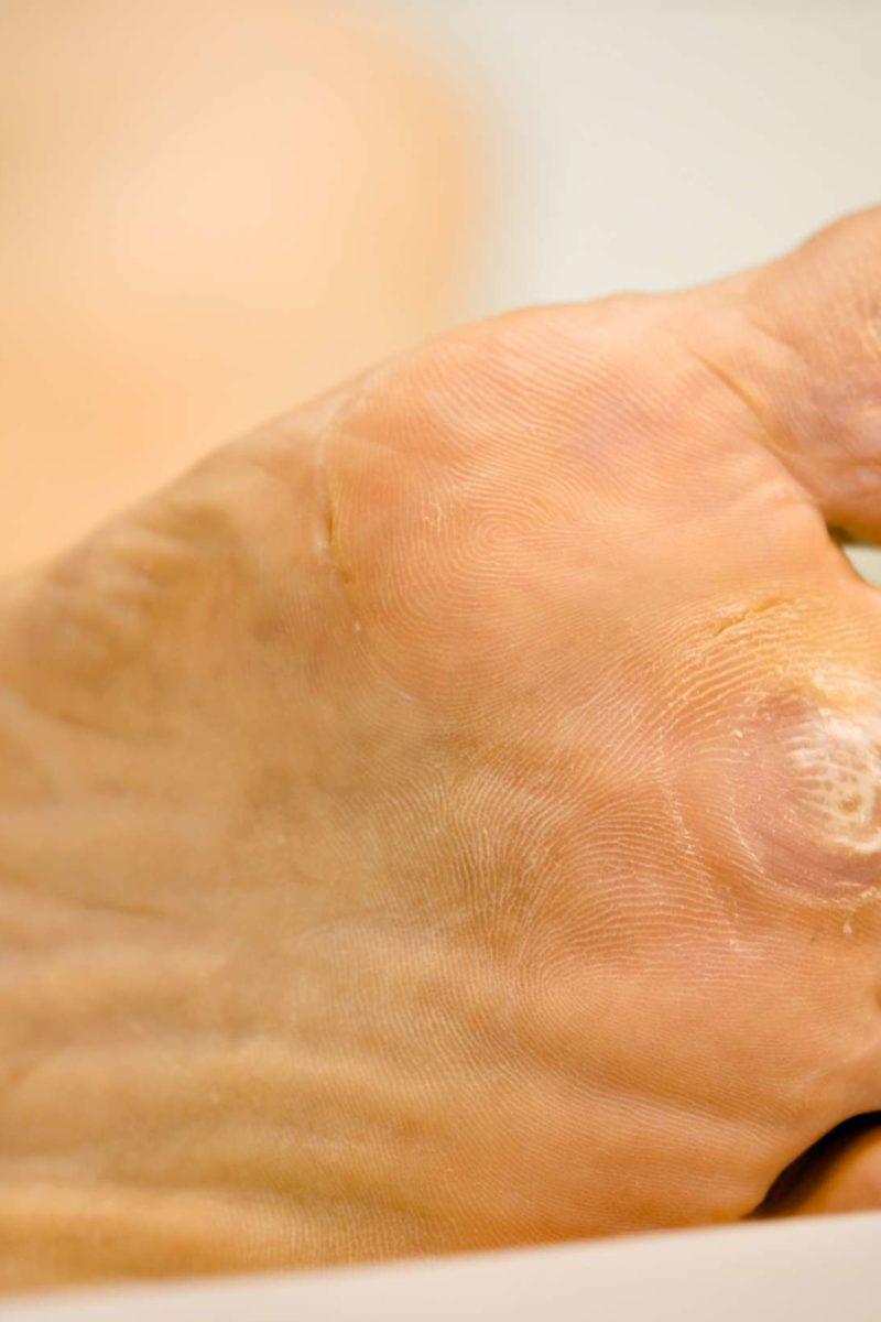 foot wart types