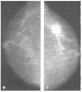 cancer gastric definition