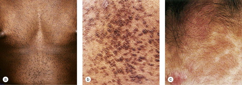 Confluent and reticulated papillomatosis natural treatment. Metastatic cancer from prostate
