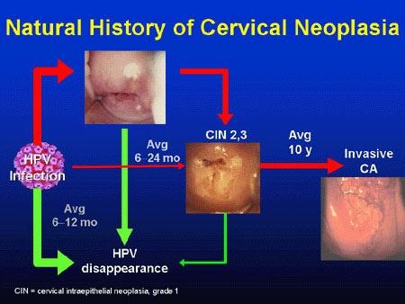 virusul papilom oncogen papilomele sunt cele mai eficiente