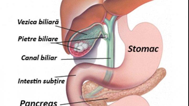 cancerul biliar