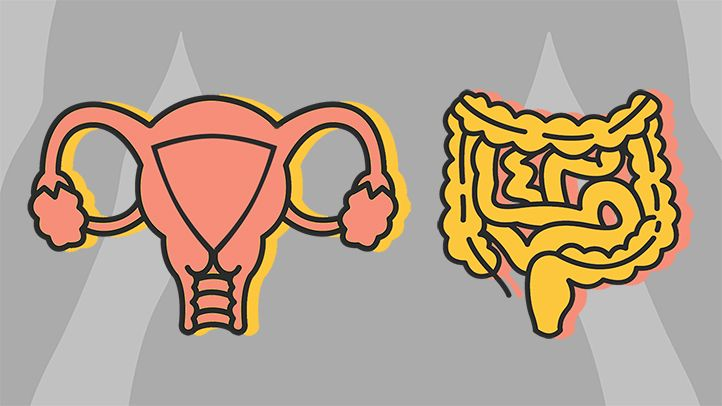 ovarian cancer or ibs sintomas de oxiuros en mujeres