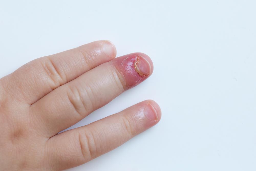 Deformatiile degetelor