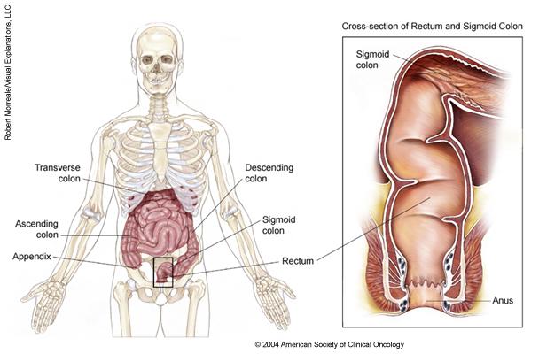 cauze cancer de sigmoid