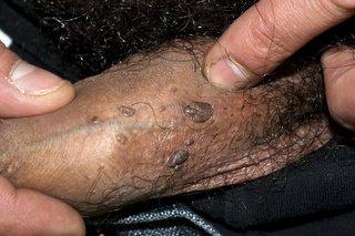 wart treatment nhs