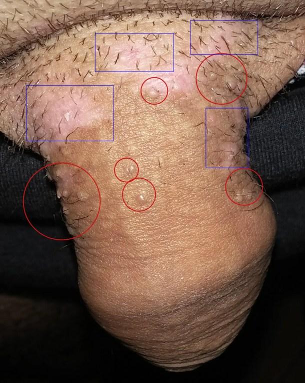 effet papillomavirus chez l homme