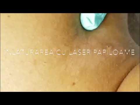 cancer of gastric care avea negi genitale în gură