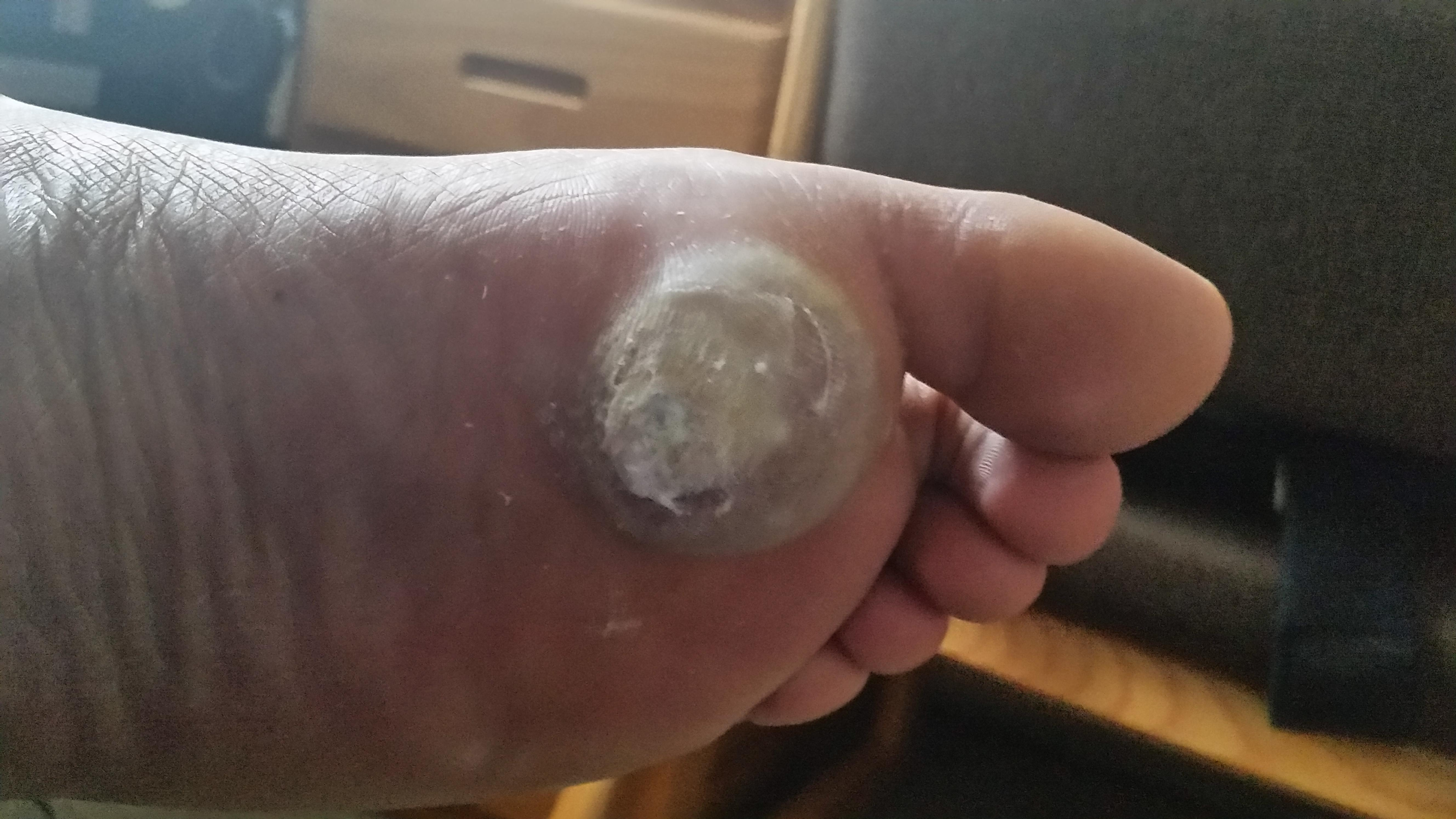 wart on foot reddit