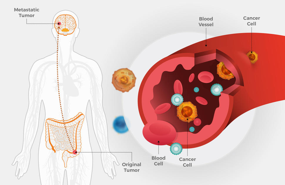 Colorectal cancer treatment options, Traducere