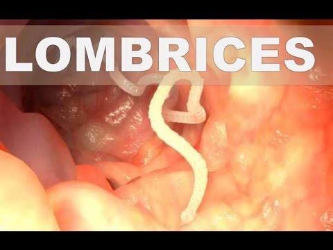 medicamentos para combatir los oxiuros detoxifierea corpului dependenței